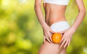 La celulitis es una condición que puede tener desde una jovencita hasta una persona despues de la menopausia